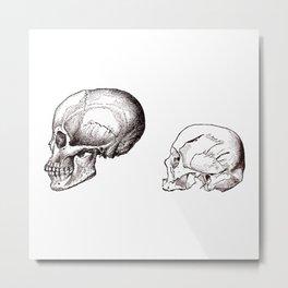 Cranial Configurations Metal Print