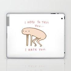 Honest Blob - Hate Laptop & iPad Skin