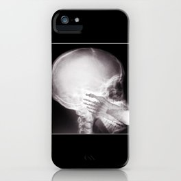 Foot In Mouth X-Ray iPhone Case