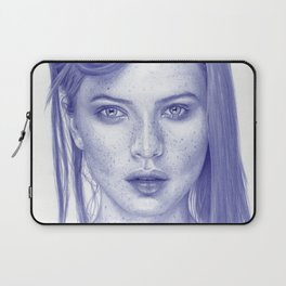 Freckles Laptop Sleeve