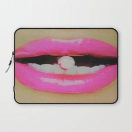Upgrade Candy Cane Lips Laptop Sleeve