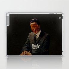 King Laptop & iPad Skin