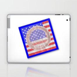 Stars And Stripes Condom Laptop & iPad Skin