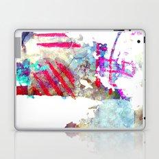 why Laptop & iPad Skin