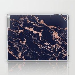Modern chic navy blue rose gold marble pattern Laptop & iPad Skin