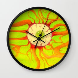 Scleral Hemorrhage Wall Clock