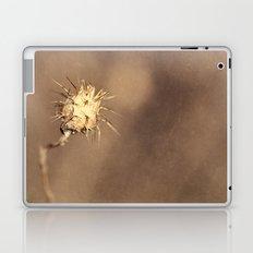 Real World Laptop & iPad Skin