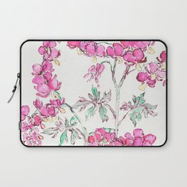 Chains of Lovers Laptop Sleeve