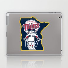 The Conjoined Twins Laptop & iPad Skin