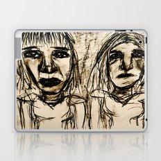 Acetone Us Away. Laptop & iPad Skin