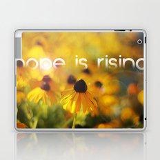hope is rising  Laptop & iPad Skin