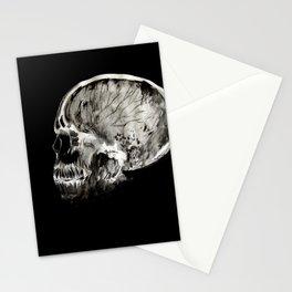 January 11, 2016 (Year of radiology) Stationery Cards
