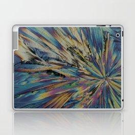 Subtle Sexy Adrenaline Laptop & iPad Skin