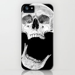 Jaw Drop iPhone Case