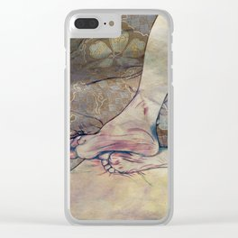 Unbearable Itch Clear iPhone Case