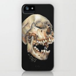 Open Mouth Skull iPhone Case