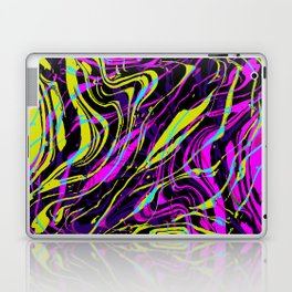Surprise Party for any Occasion Laptop & iPad Skin
