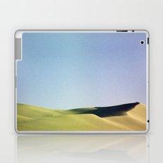 grain loss Laptop & iPad Skin