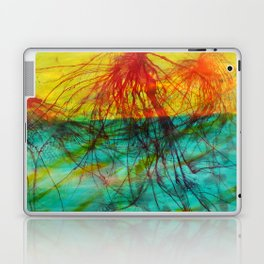 Tree Stars Laptop & iPad Skin