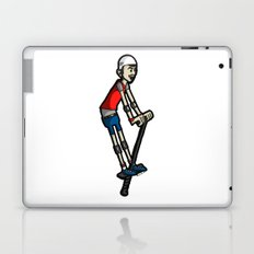 Pogo Laptop & iPad Skin
