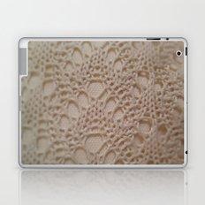 crochet cotton Laptop & iPad Skin