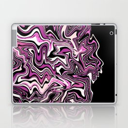 Rose Glitter Agate Slice Laptop & iPad Skin
