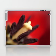 TULIP DAY Laptop & iPad Skin