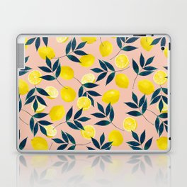 Lemony Goodness Laptop & iPad Skin