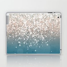 New Colors X Laptop & iPad Skin