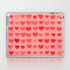 Pink Valentines Love Hearts Laptop & iPad Skin