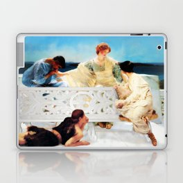 Lack of Privacy Laptop & iPad Skin