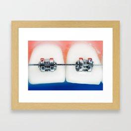 Dental braces Framed Art Print