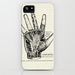 Vintage Anatomy Illustration of the Palm of the Hand iPhone Case