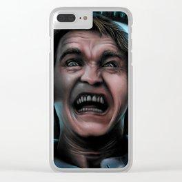 REKALL Clear iPhone Case