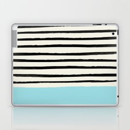 Sky Blue x Stripes Laptop & iPad Skin