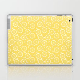 lemonade Laptop & iPad Skin