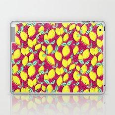 Lemon and pink Laptop & iPad Skin