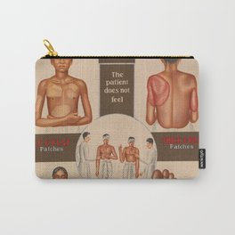 Leprosy patients showing symptoms. Colour lithograph, 1950s. Carry-All Pouch