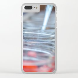 Love is Sweet 3 Clear iPhone Case