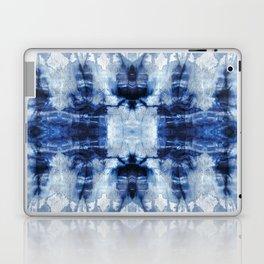 Dying to Meet Ya Laptop & iPad Skin