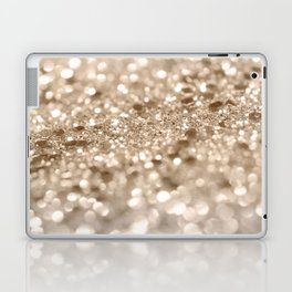 Gold Lady Glitter #2 #shiny #decor #art #society6 Laptop & iPad Skin