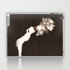 Negative Kiss Laptop & iPad Skin