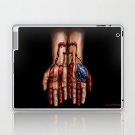 Blood of Hurricane Katrina Laptop & iPad Skin