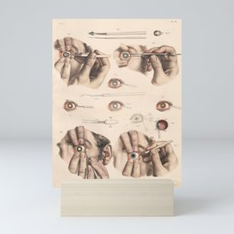 Vintage Eye Surgery Illustrations Mini Art Print
