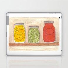 Canning Laptop & iPad Skin
