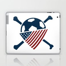 AO Laptop & iPad Skin