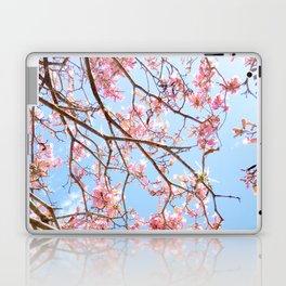 Bright Skies Laptop & iPad Skin