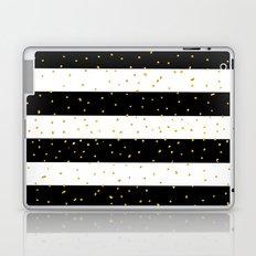 Black white gold faux glitter stripes polka dots  Laptop & iPad Skin
