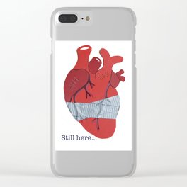 Still here on white Clear iPhone Case