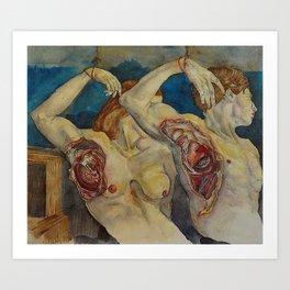 Maladie du Coeur Art Print
